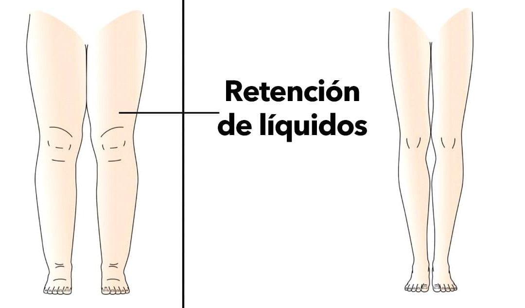 Retención de líquidos durante el embarazo – Algunos tratamientos