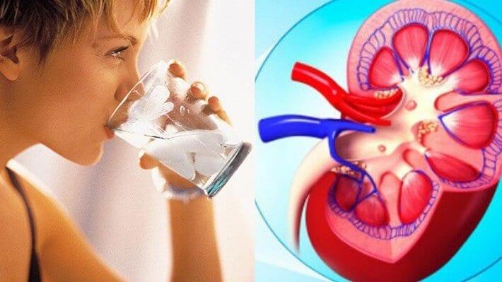 Litiasis renal – Recomendaciones nutricionales a tener en cuenta.